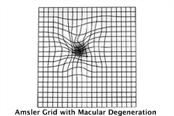 Amsler grid as it might appear to someone with age-related macular degeneration